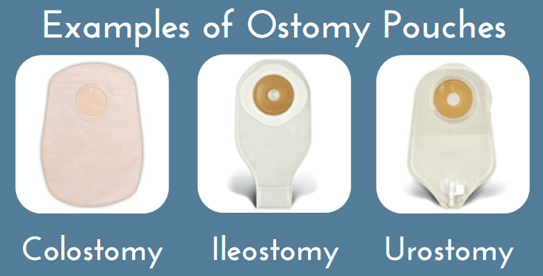 examples of ostomy pouch types