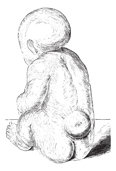 spina_bifida_infant_depiction