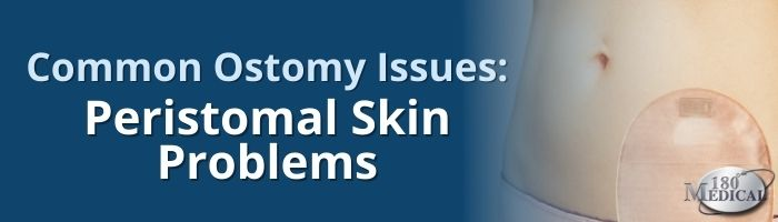 Common Ostomy Issues - Peristomal Skin Problems